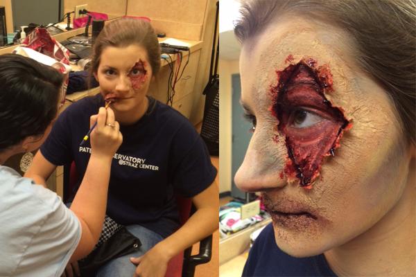 eye wound collage